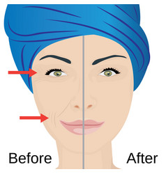 Aging face treatment before and after vector