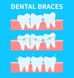 cartoon teeth before and vector image