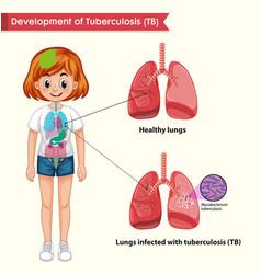 Scientific medical tuberculosis vector