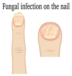 Nail fungal infection vector