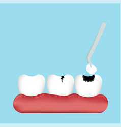 Filling tooth on gums vector