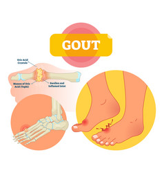 gout medical labeled scheme vector image