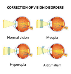 correction of eye vision disorders by lens vector image