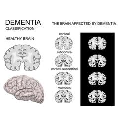 Dementia Alzheimer disease vector