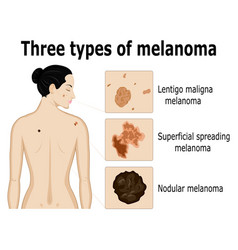 three types of melanoma vector image