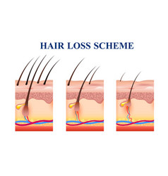 Hair loss scheme vector