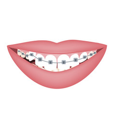 woman smile with braces on crooked teeth vector image
