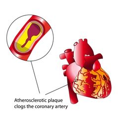 Atherosclerotic plaque vector image vector image
