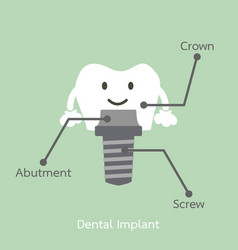 structure of the dental implant with all parts vector image