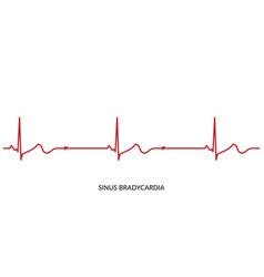 ecg heartbeat line electrocardiogram sinus vector image