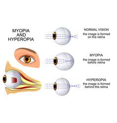 Myopia and hyperopia vector