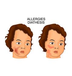 Allergies diathesis pediatrics vector