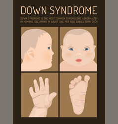 Down syndrom symptoms vector