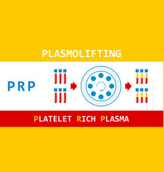 plasmolifting platelet rich plasma prp method vector image