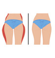 fat thigs correction liposuction vector image vector image
