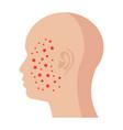 dermatology icon vector image