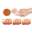 tissue injury and inflammation vector image vector image