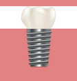 realistic human dental implant vector image