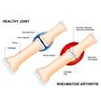 Rheumatoid Arthritis vector image