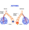 Asthma vector image