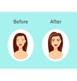 Plastic surgery before and after vector image
