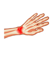 pain hand vector image vector image