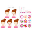 set of girl with acne on face and treatment icons vector image