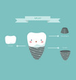 dental implant structure teeth and tooth concept vector image vector image