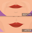 woman lips before and after treatment vector image