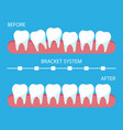 the process correction teeth with orthopedic vector image