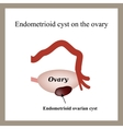 Endometrioid cyst on the ovary Endometriosis vector image vector image