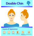 causes of double chin diagram vector image