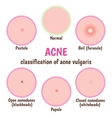 acne skin care vector image