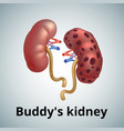realistic human sick kidneys isolated on white vector image