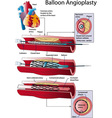Balloon Angioplasty vector image vector image