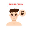men skin problem facial care vector image vector image
