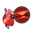 Myocardial infarction vector image vector image