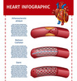 realistic heart infographic surgery therapy banner vector image vector image