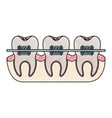 teeth with braces and tooth root view in colored vector image vector image