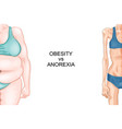 anorexia and obesity vector image vector image