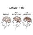 dementia alzheimer disease medicine vector image vector image