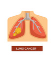 lung cancer oncology and tumor disease or illness vector image vector image