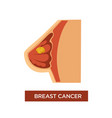 breast cancer female oncology and tumor in chest vector image