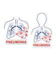 pneumonia disease icon human lungs anatomy vector image vector image