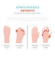 joints diseases arthritis symptoms treatment icon vector image vector image
