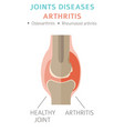 joints diseases arthritis symptoms treatment icon vector image