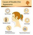 causes of double chin vector image