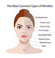 Common types of facial wrinkles cosmetic surgery