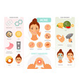 acne infographic vector image