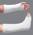 plastered leg and arm treatment of a broken leg vector image